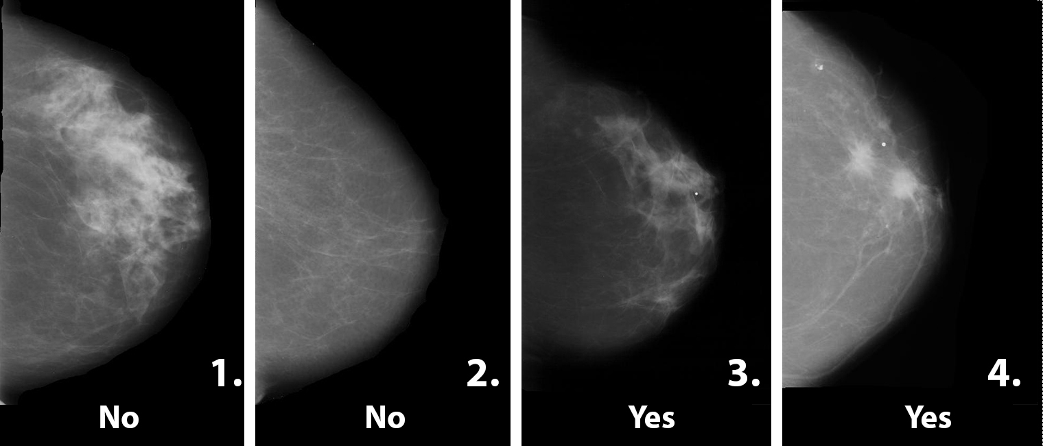 This image shows the answers to the sample mammogram screening task