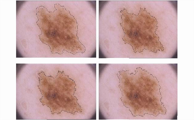 image of Pushing the boundaries of melanoma border detection
