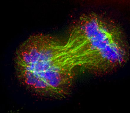 image of Cell division study opens new leads against cancer