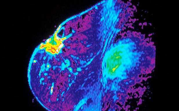 image of Robots learn to help doctors spot breast cancer