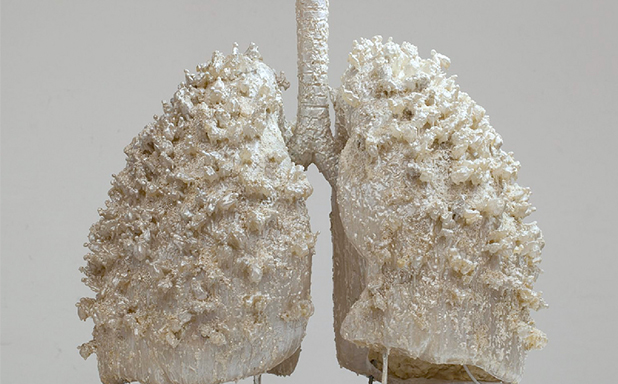 image of Cerebral palsy patients' lung disease death risk 14 times higher