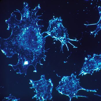 Oncoprotein MYB in the head and neck cancer adenoid cystic carcinoma