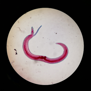 Reducing the risk of human infection to Schistosomiasis