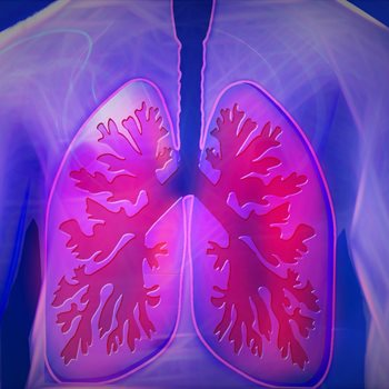 Host-pathogen interactions in tuberculosis
